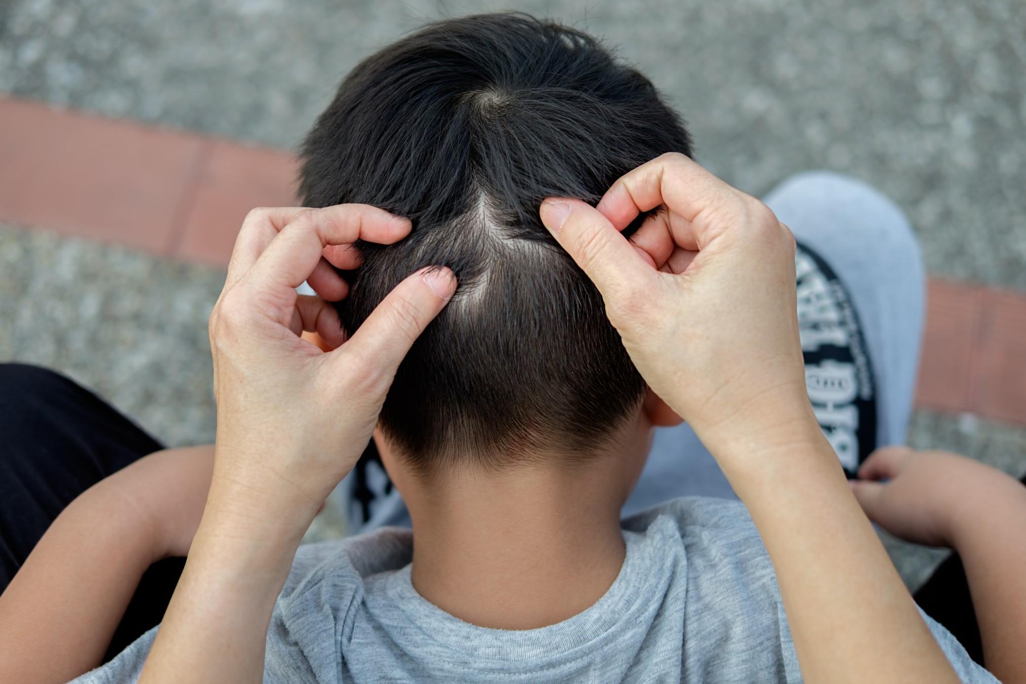 poux-cheveux